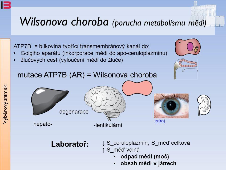 Výběrový snímek Wilsonova choroba (porucha metabolismu mědi) hepato- -lentikulární degenarace ATP7B = bílkovina tvořící transmembránový kanál do: Golgiho aparátu (inkorporace mědi do apo-ceruloplazminu) žlučových cest (vyloučení mědi do žluče) ↓ S_ceruloplazmin, S_měď celková ↑ S_měď volná odpad mědi (moč) obsah mědi v játrech mutace ATP7B (AR) = Wilsonova choroba zdroj Laboratoř: