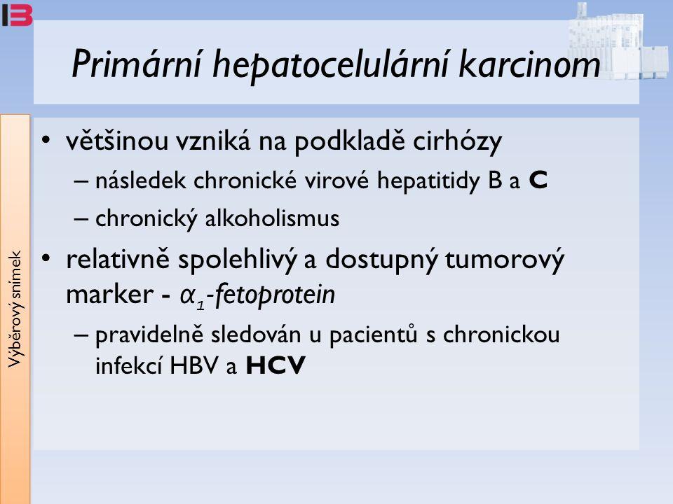 Výběrový snímek Primární hepatocelulární karcinom většinou vzniká na podkladě cirhózy – následek chronické virové hepatitidy B a C – chronický alkoholismus relativně spolehlivý a dostupný tumorový marker - α 1 -fetoprotein – pravidelně sledován u pacientů s chronickou infekcí HBV a HCV