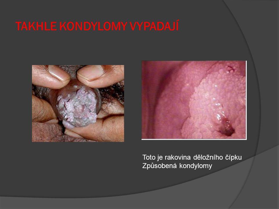 TAKHLE KONDYLOMY VYPADAJÍ Toto je rakovina děložního čípku Způsobená kondylomy