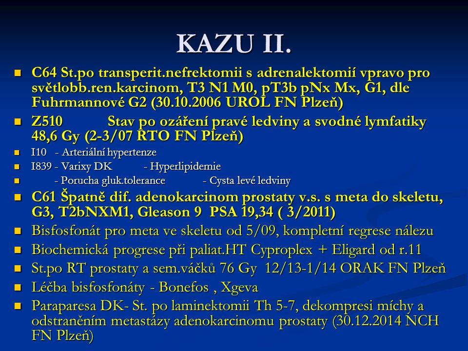KAZU II.