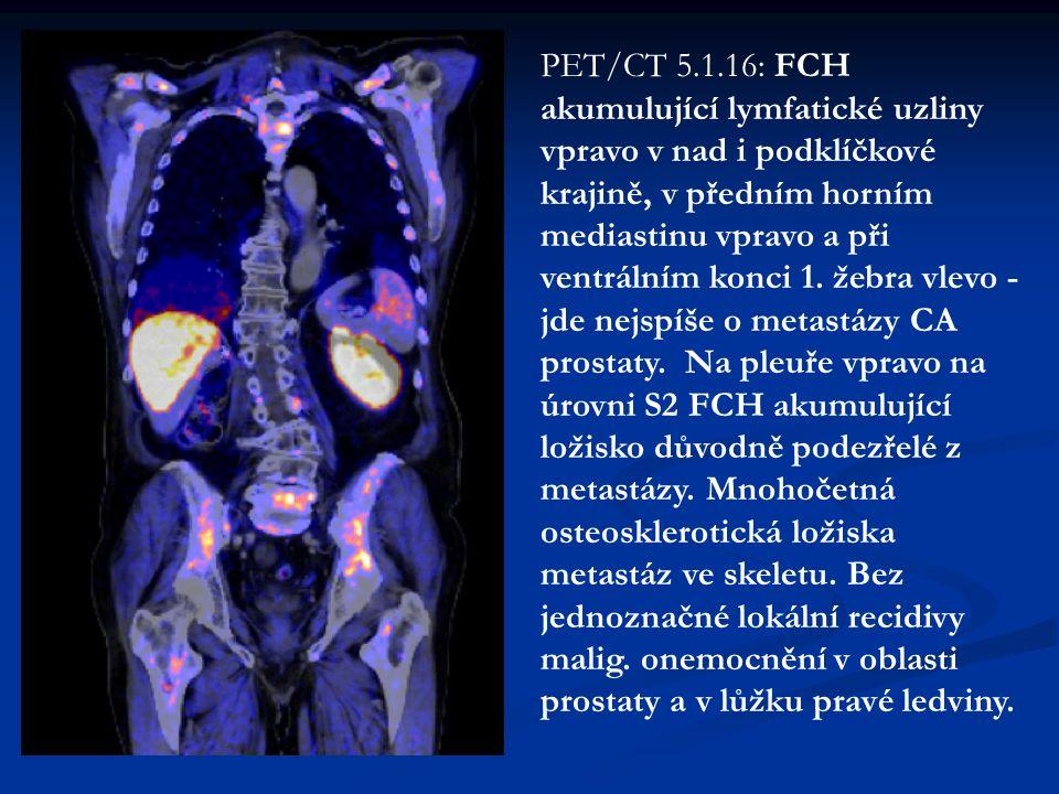 PET/CT 5.1.16: FCH akumulující lymfatické uzliny vpravo v nad i podklíčkové krajině, v předním horním mediastinu vpravo a při ventrálním konci 1.