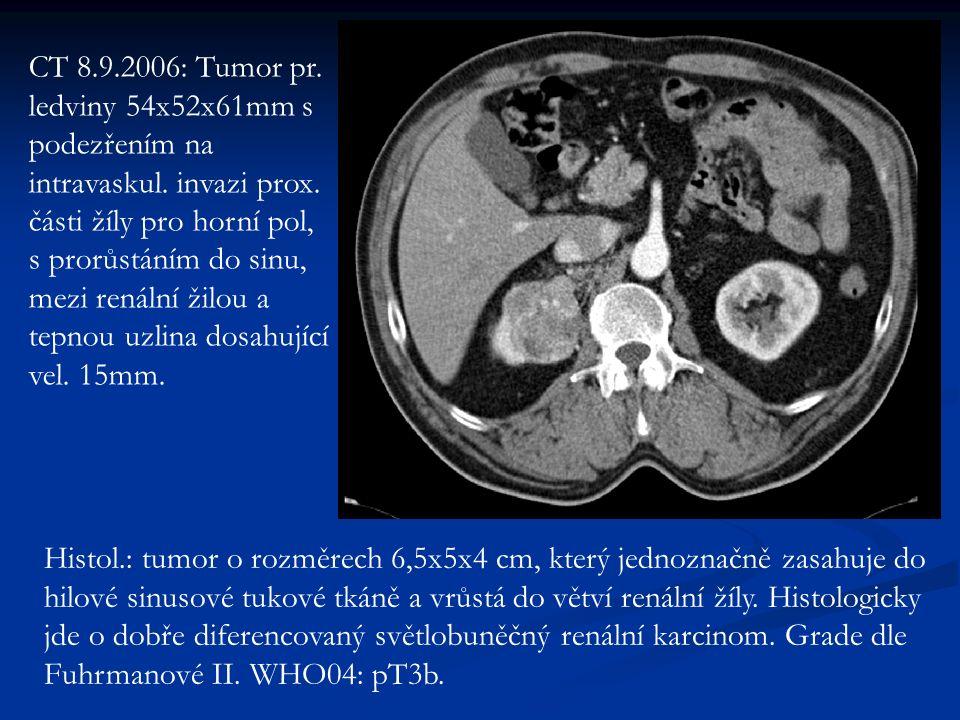CT 8.9.2006: Tumor pr. ledviny 54x52x61mm s podezřením na intravaskul.