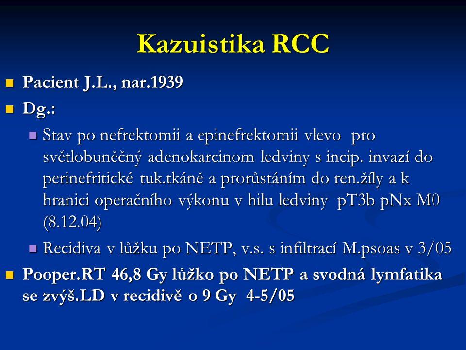Kazuistika RCC Pacient J.L., nar.1939 Pacient J.L., nar.1939 Dg.: Dg.: Stav po nefrektomii a epinefrektomii vlevo pro světlobuněčný adenokarcinom ledviny s incip.