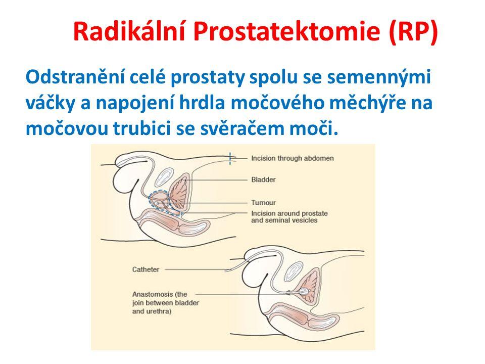 Radikální Prostatektomie (RP) Odstranění celé prostaty spolu se semennými váčky a napojení hrdla močového měchýře na močovou trubici se svěračem moči.