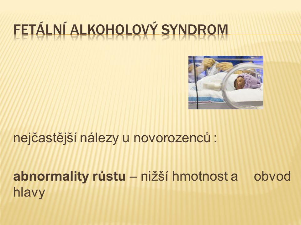 nejčastější nálezy u novorozenců : abnormality růstu – nižší hmotnost a obvod hlavy