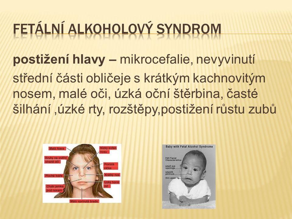 postižení hlavy – mikrocefalie, nevyvinutí střední části obličeje s krátkým kachnovitým nosem, malé oči, úzká oční štěrbina, časté šilhání,úzké rty, rozštěpy,postižení růstu zubů