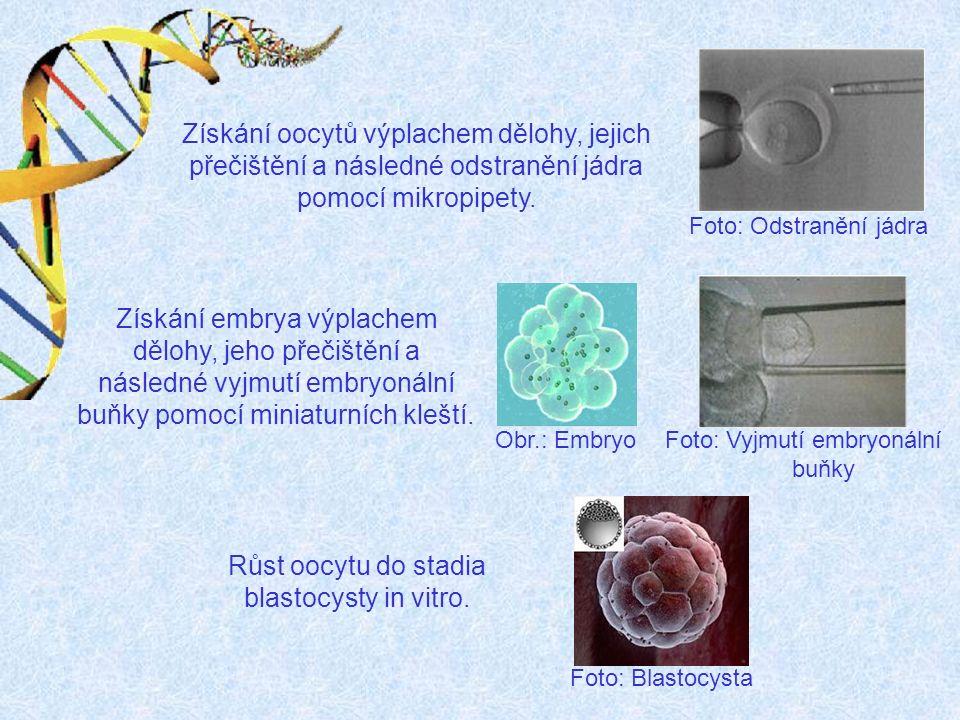 Schéma přenosu jádra zárodečnébuňky