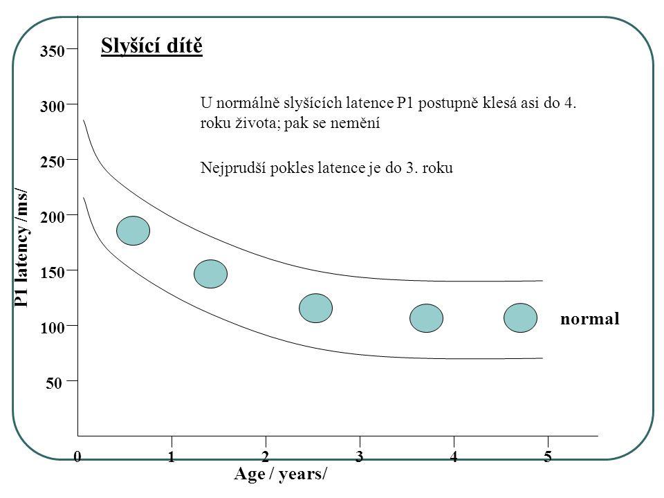 054321 50 150 100 250 200 350 300 Age / years/ P1 latency /ms/ normal U normálně slyšících latence P1 postupně klesá asi do 4.