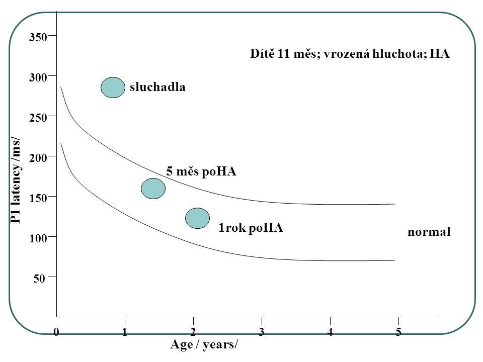 054321 50 150 100 250 200 350 300 Age / years/ P1 latency /ms/ normal Dítě 11 měs; vrozená hluchota; HA sluchadla 5 měs poHA 1rok poHA