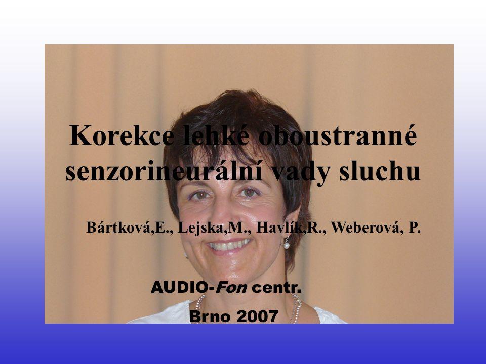 The Impact of Minimal and Mild Hearing Loss on Children Sluchadla mělo: –80% s oboustrannou mělo sluchadla Akceptace sluchadla -44% používá trvale - 6% jen ve škole -50% nepoužívá Anne Marie Tharpe (USA, 2004) 35 dětí ze 100