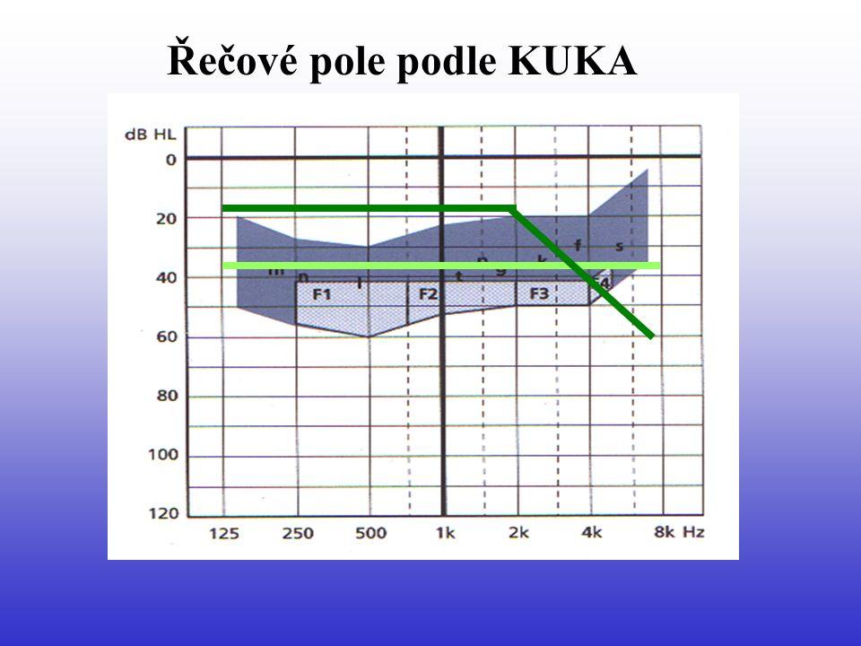 Pravidla pro korekci Digitální lépe než analogové sluchadlo Principal gain podle frekvenční ztráty Preference řečových a vyšších frekvencí Omezení hlubokých frekvencí Komprese – lineární s limitací výstupu Otevřená ušní vložka