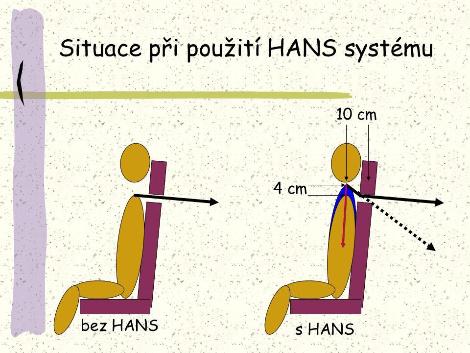 Situace při použití HANS systému 4 cm 10 cm bez HANS s HANS