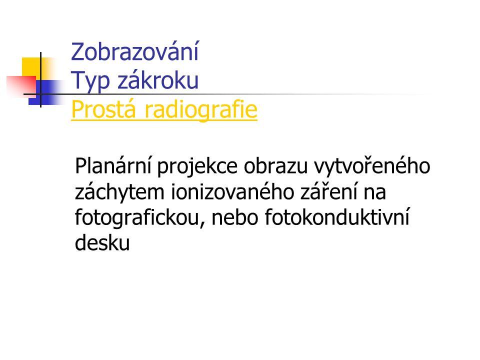 Zobrazování Typ zákroku Prostá radiografie Planární projekce obrazu vytvořeného záchytem ionizovaného záření na fotografickou, nebo fotokonduktivní desku