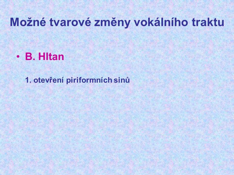 Možné tvarové změny vokálního traktu B. Hltan 1. otevření piriformních sinů