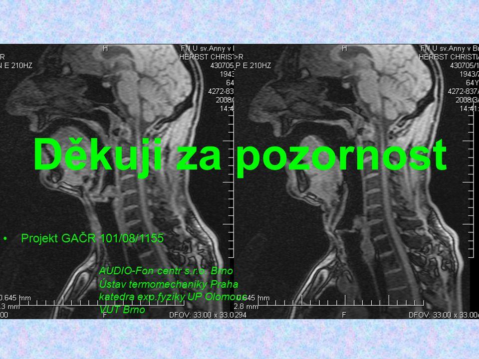 Děkuji za pozornost Projekt GAČR 101/08/1155 AUDIO-Fon centr s.r.o. Brno Ústav termomechaniky Praha katedra exp.fyziky UP Olomouc VUT Brno