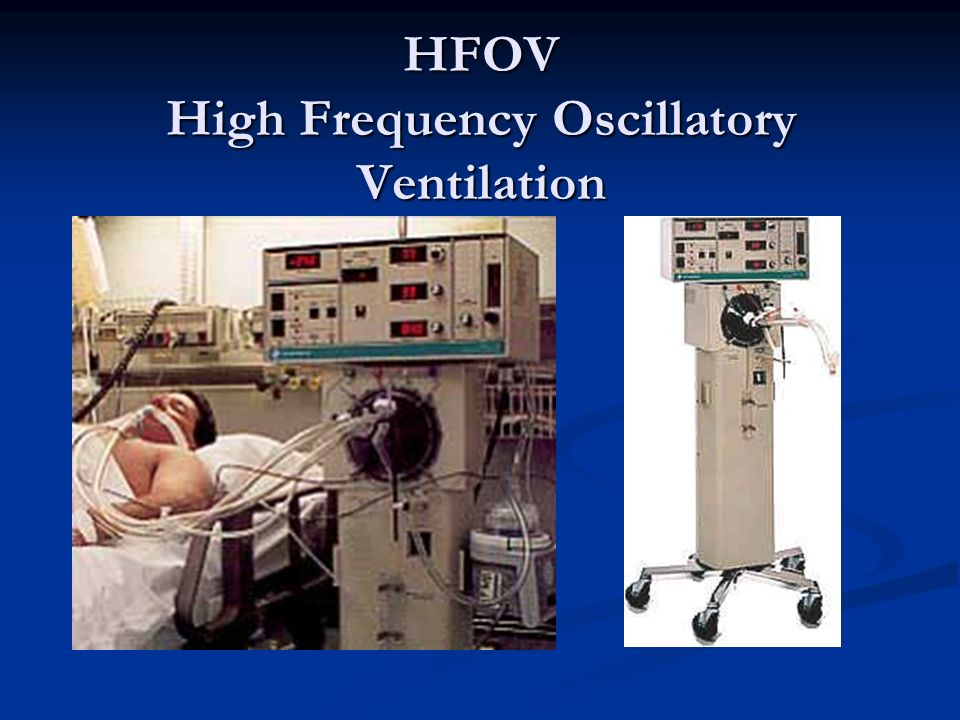 HFOV High Frequency Oscillatory Ventilation