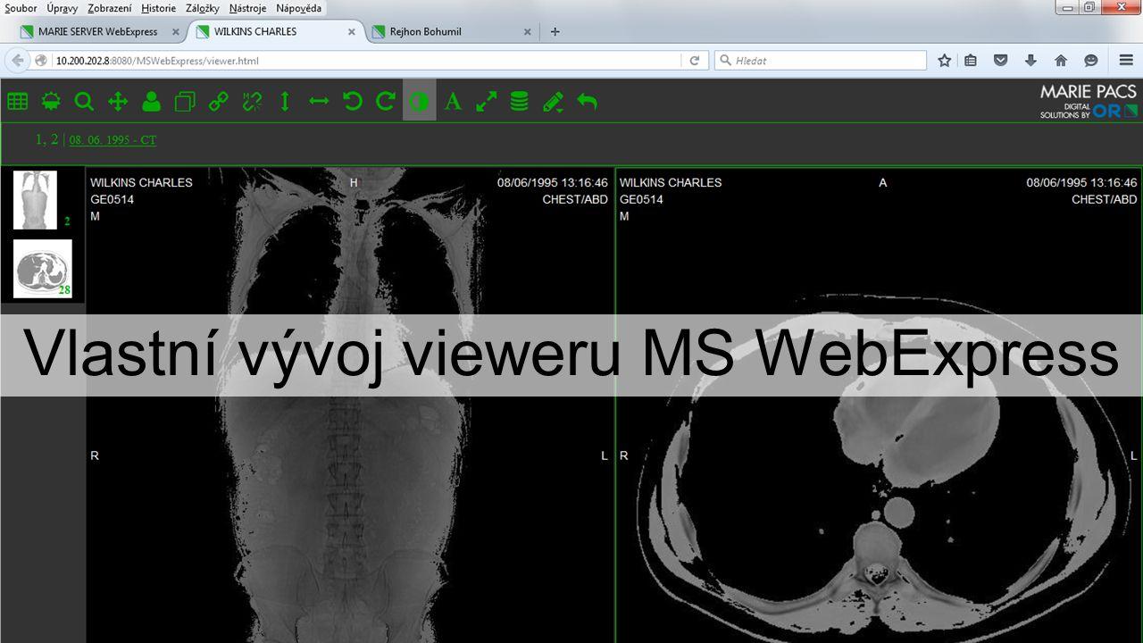Vlastní vývoj vieweru MS WebExpress