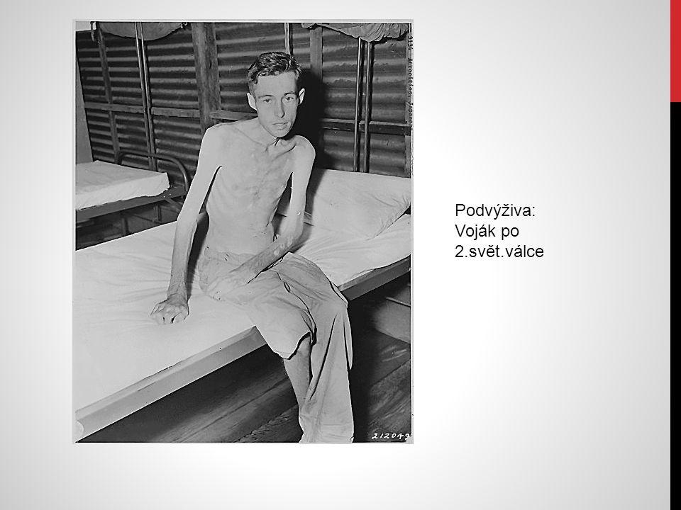 Podvýživa: Voják po 2.svět.válce