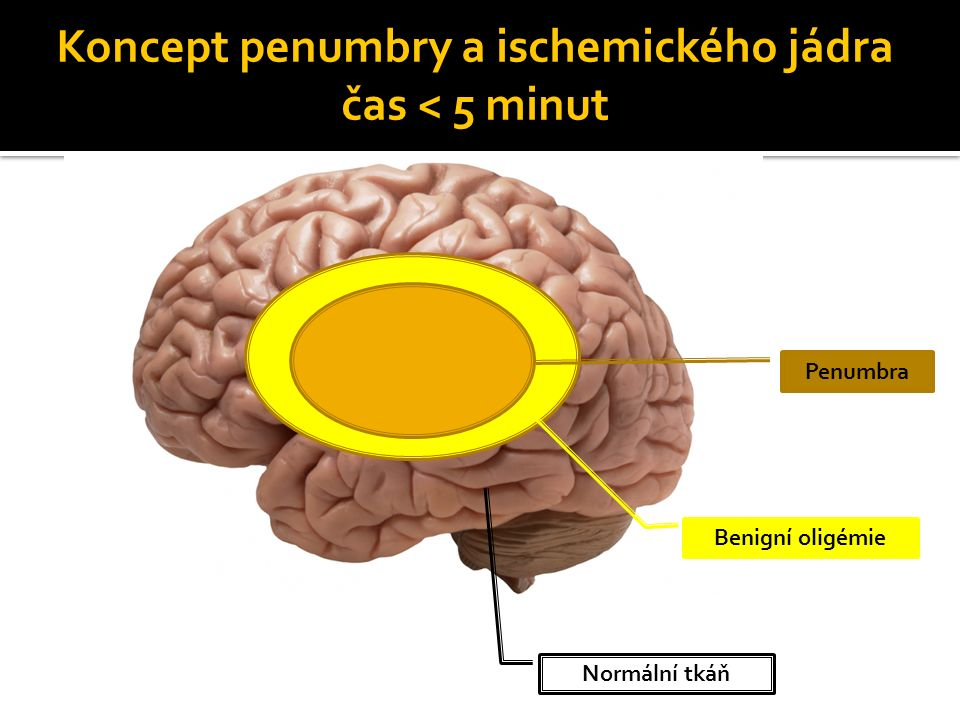 Koncept penumbry a ischemického jádra čas 5 minut Penumbra Benigní oligémie Jádro ischémie Normální tkáň