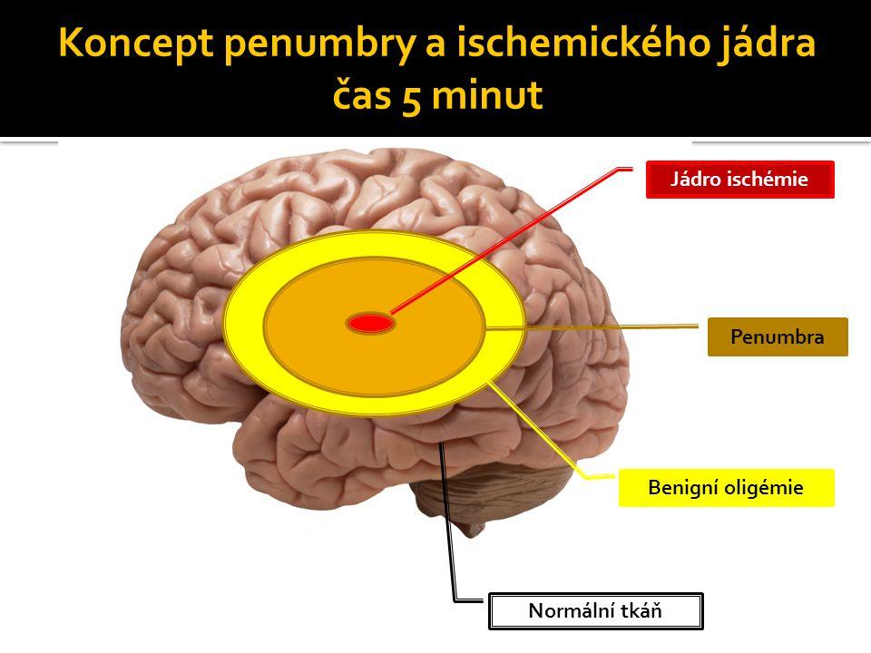 Koncept penumbry a ischemického jádra čas 3 hodiny Penumbra Benigní oligémie Jádro ischémie Normální tkáň