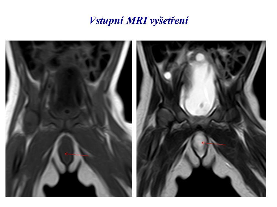 Vstupní MRI vyšetření