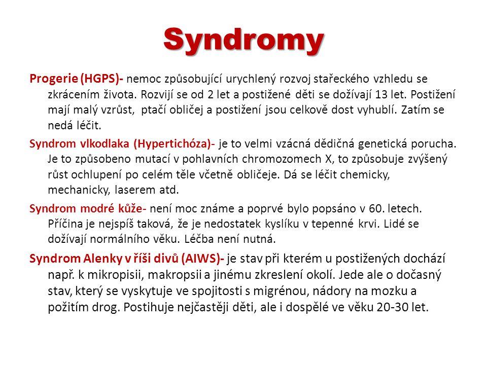 Syndromy Progerie (HGPS)- nemoc způsobující urychlený rozvoj stařeckého vzhledu se zkrácením života. Rozvijí se od 2 let a postižené děti se dožívají