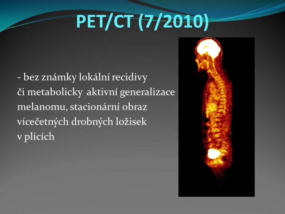 PET/CT (7/2010) - bez známky lokální recidivy či metabolicky aktivní generalizace melanomu, stacionární obraz vícečetných drobných ložisek v plicích