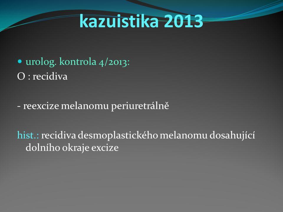 kazuistika 2013 urolog.