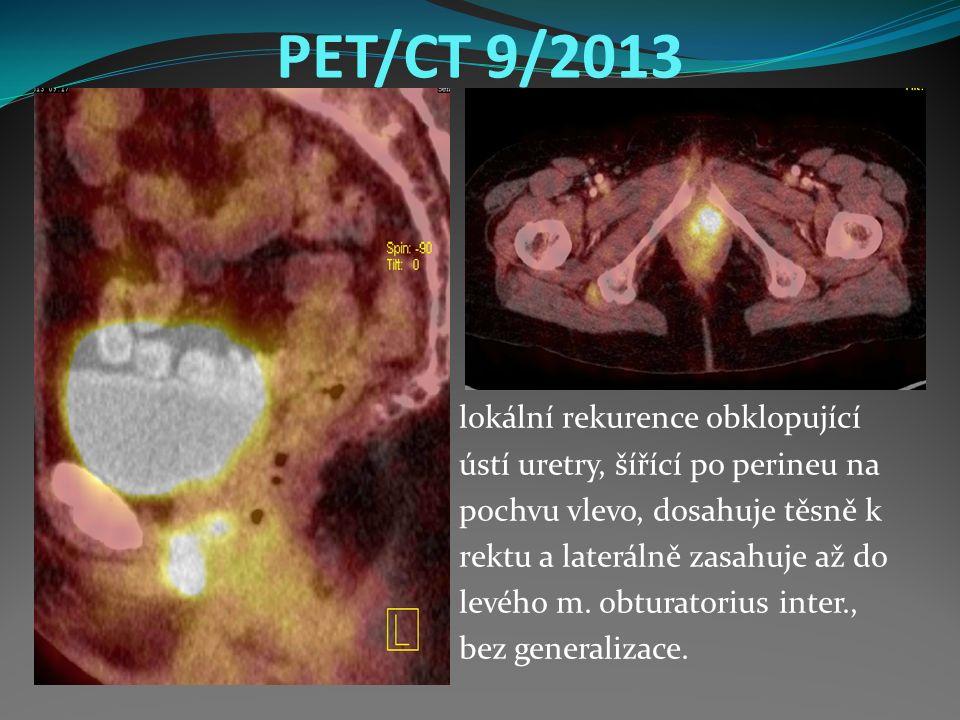 PET/CT 9/2013 lokální rekurence obklopující ústí uretry, šířící po perineu na pochvu vlevo, dosahuje těsně k rektu a laterálně zasahuje až do levého m.