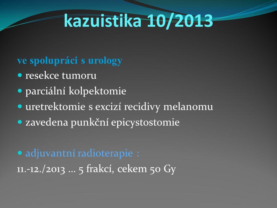 kazuistika 10/2013 ve spolupráci s urology resekce tumoru parciální kolpektomie uretrektomie s excizí recidivy melanomu zavedena punkční epicystostomie adjuvantní radioterapie : 11.-12./2013 … 5 frakcí, cekem 50 Gy