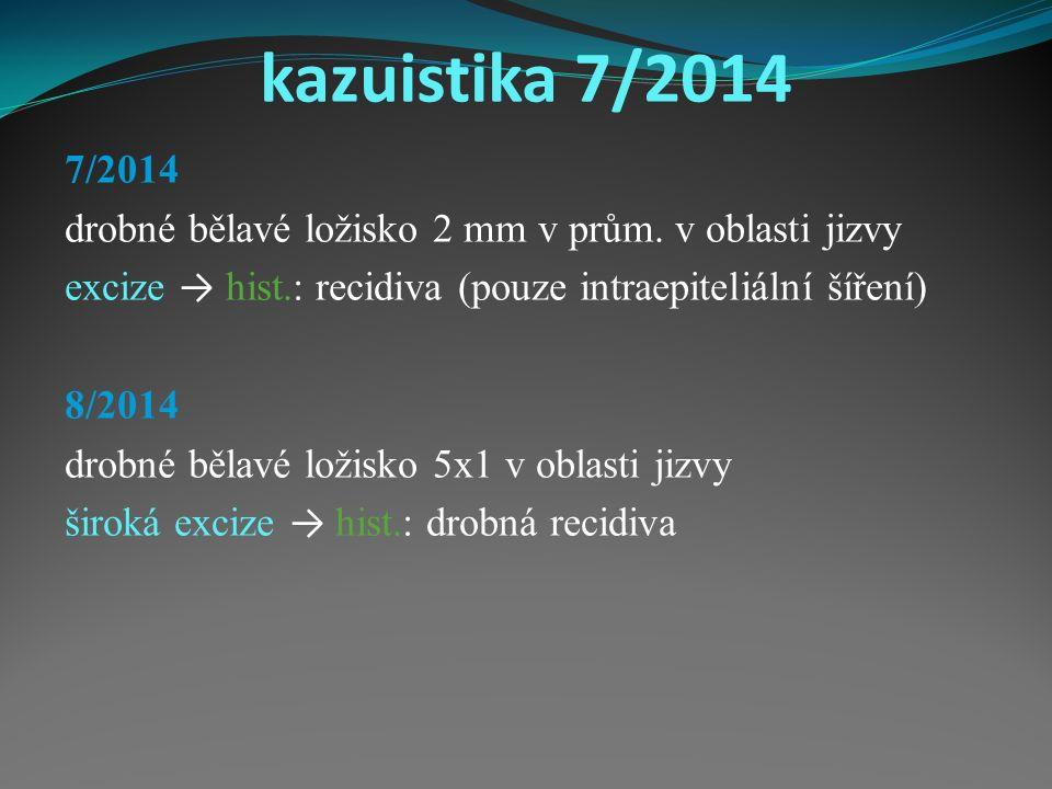 kazuistika 7/2014 7/2014 drobné bělavé ložisko 2 mm v prům.