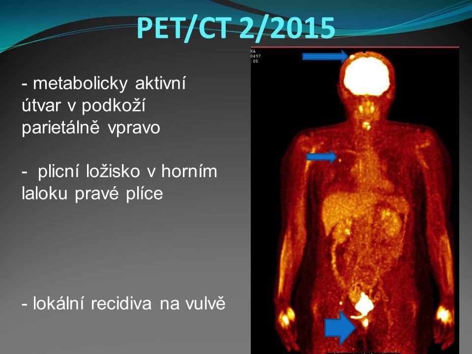 PET/CT 2/2015 - metabolicky aktivní útvar v podkoží parietálně vpravo - plicní ložisko v horním laloku pravé plíce - lokální recidiva na vulvě