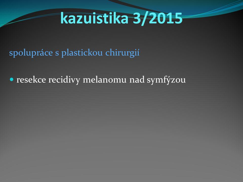 kazuistika 3/2015 spolupráce s plastickou chirurgií resekce recidivy melanomu nad symfýzou