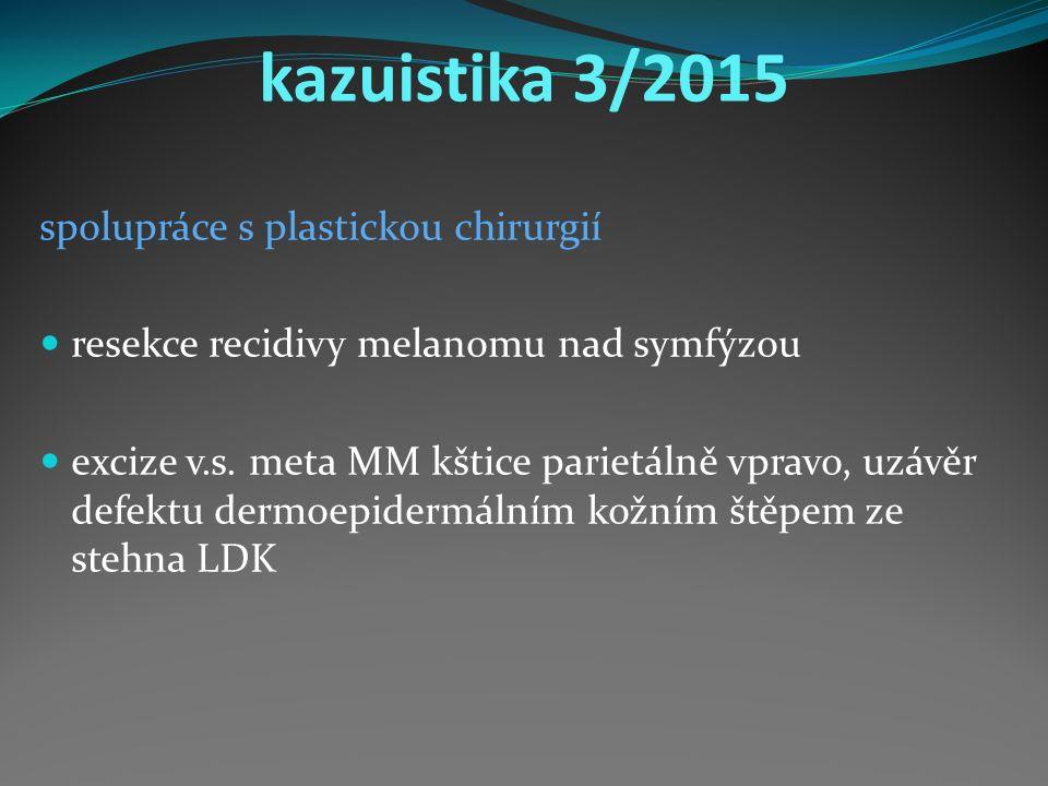 kazuistika 3/2015 spolupráce s plastickou chirurgií resekce recidivy melanomu nad symfýzou excize v.s.