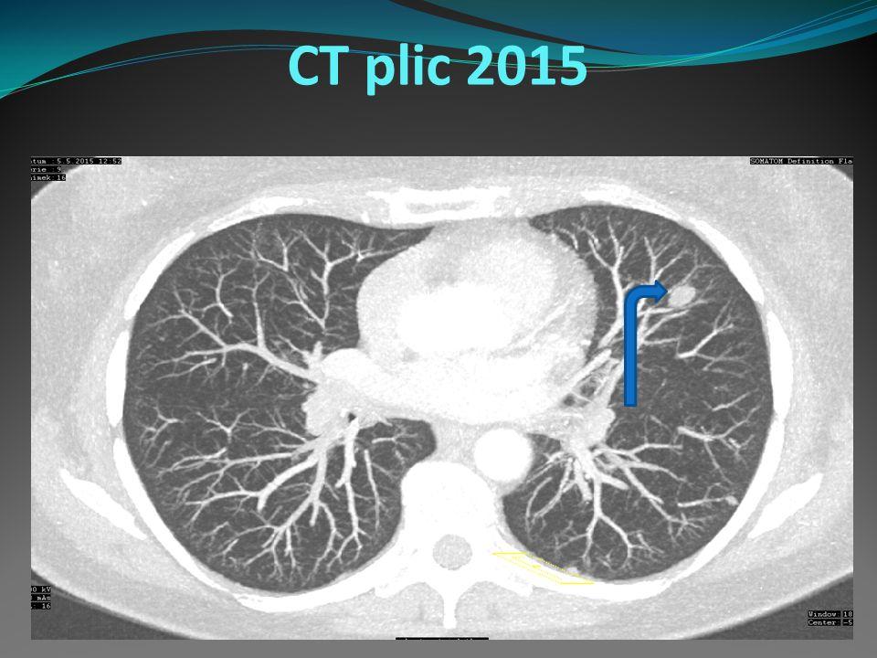 CT plic 2015