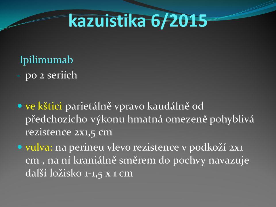 kazuistika 6/2015 Ipilimumab - po 2 seriích ve kštici parietálně vpravo kaudálně od předchozícho výkonu hmatná omezeně pohyblivá rezistence 2x1,5 cm vulva: na perineu vlevo rezistence v podkoží 2x1 cm, na ní kraniálně směrem do pochvy navazuje další ložisko 1-1,5 x 1 cm