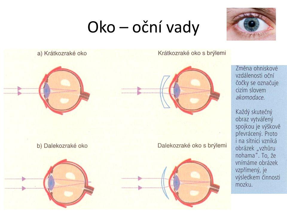 Oko – oční vady