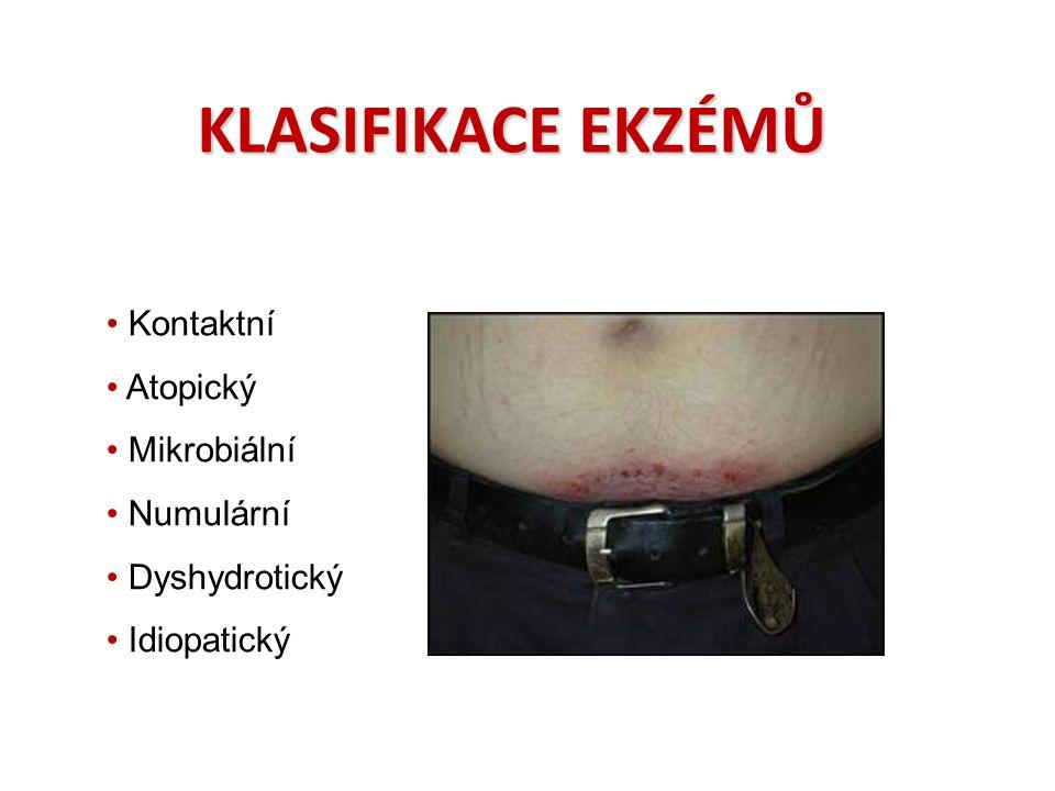 KLASIFIKACE EKZÉMŮ Kontaktní Atopický Mikrobiální Numulární Dyshydrotický Idiopatický