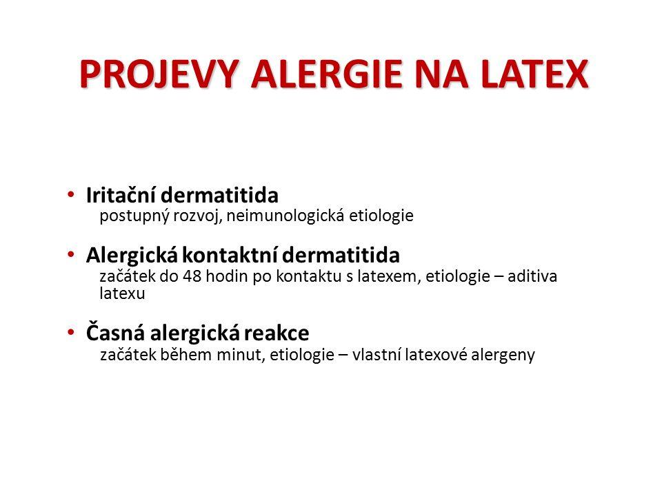PROJEVY ALERGIE NA LATEX Iritační dermatitida postupný rozvoj, neimunologická etiologie Alergická kontaktní dermatitida začátek do 48 hodin po kontaktu s latexem, etiologie – aditiva latexu Časná alergická reakce začátek během minut, etiologie – vlastní latexové alergeny