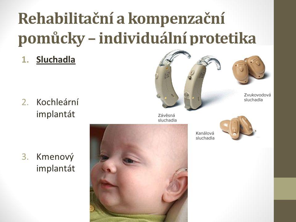 Sociální význam sluchového postižení Sluchové postižení je společensky stigmatizující: Nápadnosti nebo nepřesnosti v aktivním řečovém projevu Užívání ZJ Mimické projevy doprovázející ZJ často nepochopeny (mají informační hodnotu) Nutnost navazovat kontakt a upozorňovat na sebe dotekem Nutnost neustálého očního kontaktu (může být pro slyšícího nepříjemná) Neslyšící jsou často vnímáni jako lidé s nižší inteligencí Celkově podceňující postoj slyšící většiny k neslyšícím