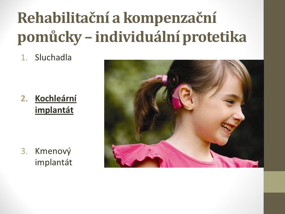 Inkluzivní projekty: Cíle 1.Společná identifikace a následné prolamování bariér mezi světem slyšících a světem osob se sluchovým postižením 2.Podpora rozvoje různých psychosociálních dovedností: Motorická koordinace Paměť Pozornost Tvořivost Komunikace a souhra s druhými lidmi Schopnost relaxovat Podpora sebevědomí i samostatnosti