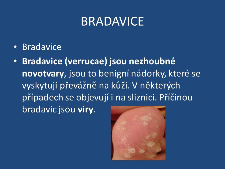 BRADAVICE Bradavice Bradavice (verrucae) jsou nezhoubné novotvary, jsou to benigní nádorky, které se vyskytují převážně na kůži.