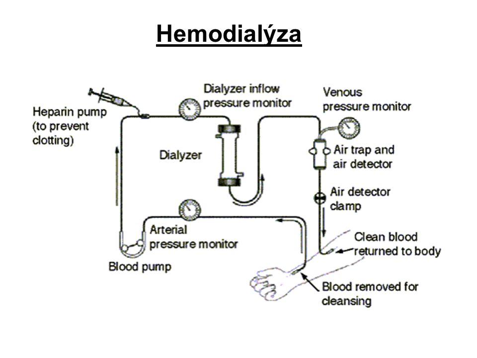 16 Urychlení eliminace TL Hemodialýza krev je mimotělním oběhem přiváděna k membráně, přes kterou může tox.