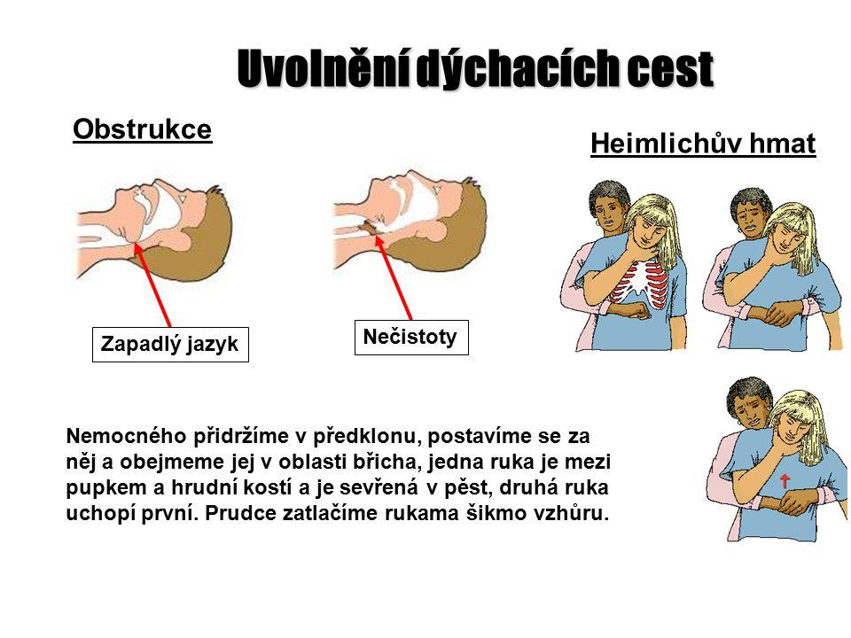 4 Obstrukce Uvolnění dýchacích cest Heimlichův hmat Nemocného přidržíme v předklonu, postavíme se za něj a obejmeme jej v oblasti břicha, jedna ruka je mezi pupkem a hrudní kostí a je sevřená v pěst, druhá ruka uchopí první.