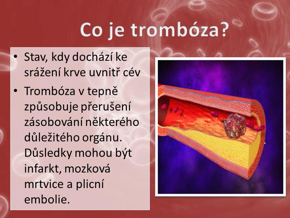 Stav, kdy dochází ke srážení krve uvnitř cév Trombóza v tepně způsobuje přerušení zásobování některého důležitého orgánu.