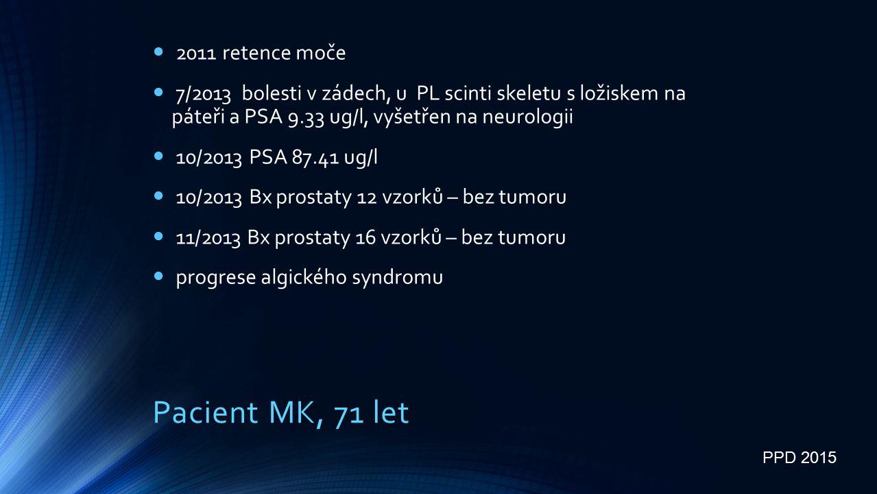 Pacient MK, 71 let 2011 retence moče 7/2013 bolesti v zádech, u PL scinti skeletu s ložiskem na páteři a PSA 9.33 ug/l, vyšetřen na neurologii 10/2013 PSA 87.41 ug/l 10/2013 Bx prostaty 12 vzorků – bez tumoru 11/2013 Bx prostaty 16 vzorků – bez tumoru progrese algického syndromu PPD 2015
