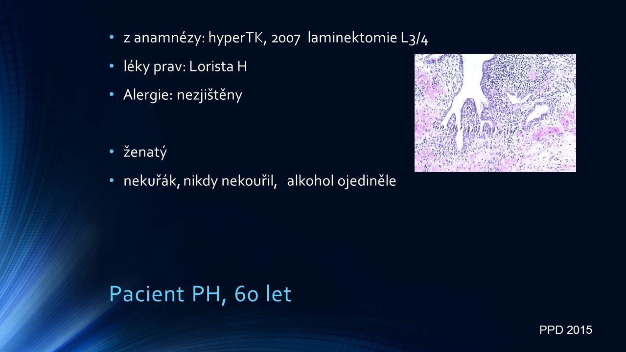 Pacient PH, 60 let z anamnézy: hyperTK, 2007 laminektomie L3/4 léky prav: Lorista H Alergie: nezjištěny ženatý nekuřák, nikdy nekouřil, alkohol ojediněle PPD 2015