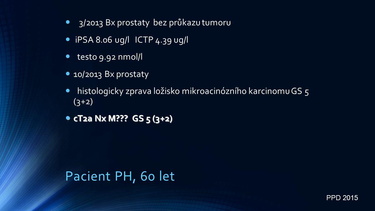 Pacient PH, 60 let 3/2013 Bx prostaty bez průkazu tumoru iPSA 8.06 ug/l ICTP 4.39 ug/l testo 9.92 nmol/l 10/2013 Bx prostaty histologicky zprava ložisko mikroacinózního karcinomu GS 5 (3+2) cT2a Nx M .