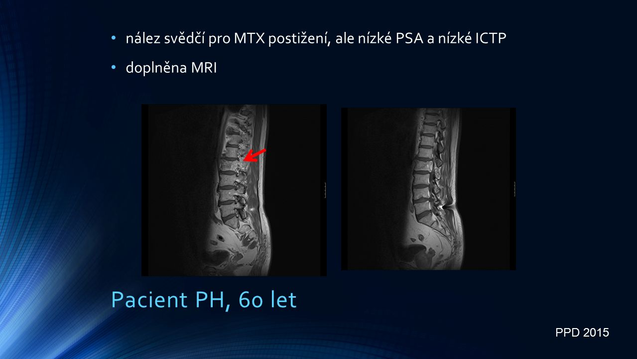 Pacient PH, 60 let nález svědčí pro MTX postižení, ale nízké PSA a nízké ICTP doplněna MRI PPD 2015