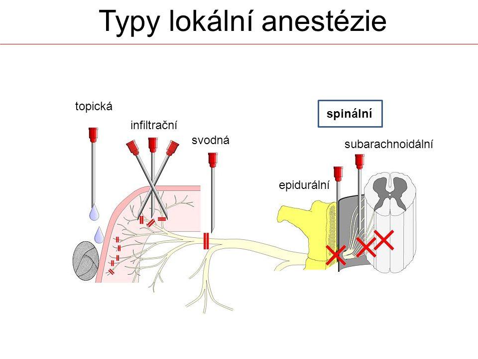 Typy lokální anestézie topická infiltrační svodná epidurální subarachnoidální spinální